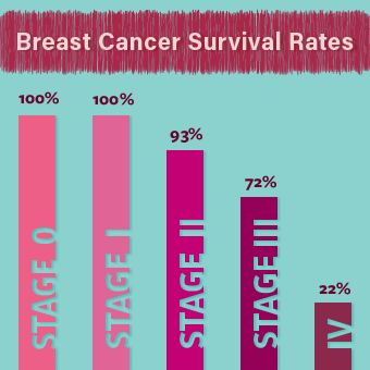 breast-cancer-s9-survival-rates-stages